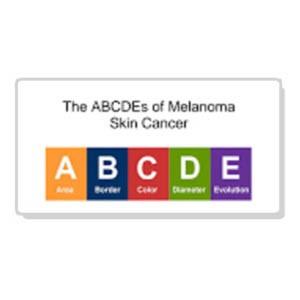 abcdes-of-melanoma-thumbnail-1